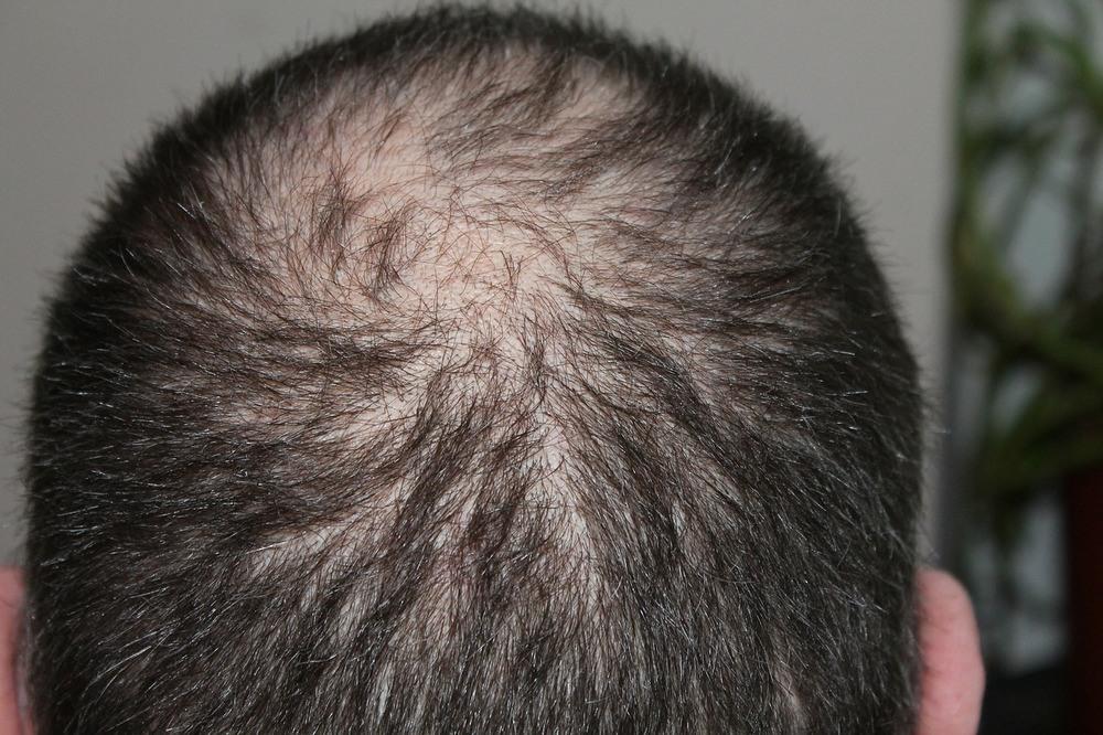 Behandling av hårtap hos menn
